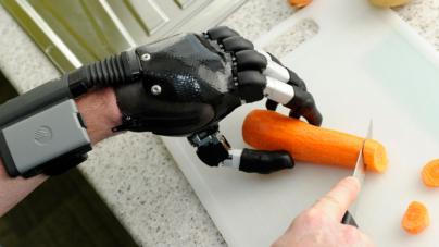 El hombre biónico | 8 trasplantes tecnológicos que te convertirán en un cyborg