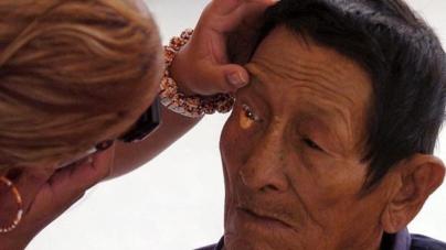 ¿Retinopatía diabética? | Si tienes diabetes debes cuidar tus ojos de la luz