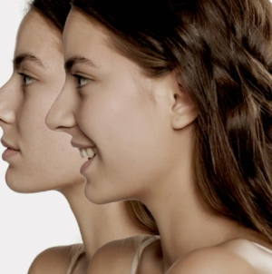 Rinomodelación   La nueva tendencia que siguen los culichis para afinar la nariz sin cirugías
