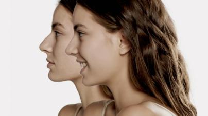 Rinomodelación | La nueva tendencia que siguen los culichis para afinar la nariz sin cirugías