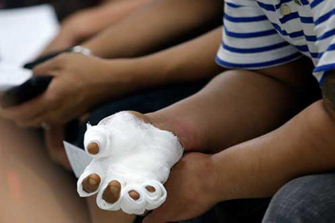Niño pierde tres dedos por jugar con cohetes | ¿Quién tiene la culpa?
