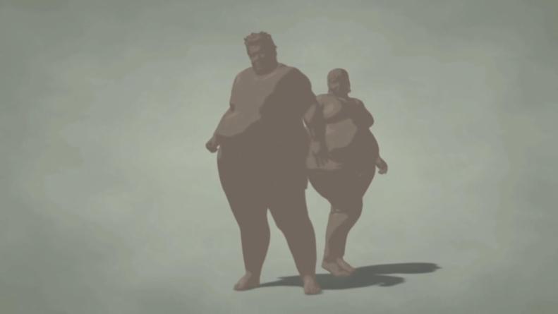 Razones de peso | Obesidad mórbida arrebataría unos 40 años de vida a adolescentes