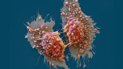 ¿Día de qué? | El cáncer, la principal causa de muerte a nivel mundial