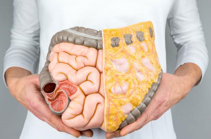 ¿Día de qué? | Cáncer de colon, el tumor maligno con mayor presencia en la sociedad