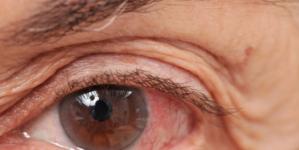 ¿Día de qué?   Glaucoma: la segunda causa de ceguera en el mundo