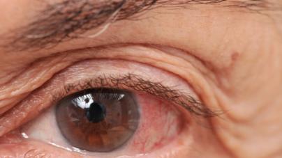 ¿Día de qué? | Glaucoma: la segunda causa de ceguera en el mundo