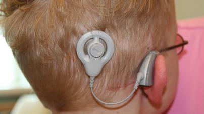 DIF lanza campaña para dotar de implantes cocleares a menores de 5 años
