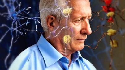 Lo dice la ciencia   El virus del herpes también puede dar origen al alzheimer