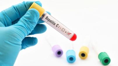 Detecta SSA 33 casos de hepatitis A en el norte de Sinaloa