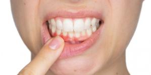 Nuestro sistema inmunológico podría estar contribuyendo a las caries dentales