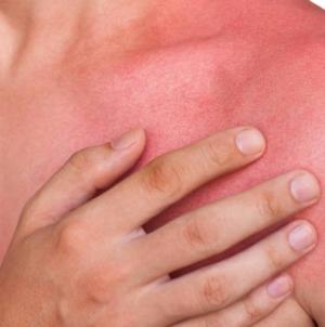 ¿Te quemaste con el sol?   Estos 4 remedios caseros te ayudaran a soportar dolores y ardores