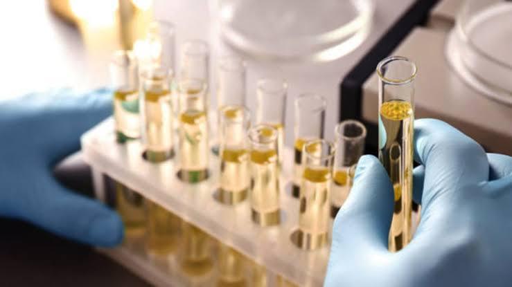 Alternativa al papanicolau | Con prueba de orina podrán detectar el cáncer cervicouterino